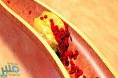 7 طرق فعَالة لتخفيض نسبة الكوليسترول في الدم