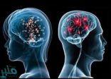 """دماغ الرجل أم المرأة… دراسة تكشف """"الفارق المذهل"""""""