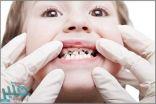 5 نصائح للوقاية من تسوس الأسنان