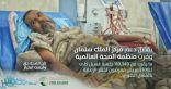بدعم من مركز الملك سلمان للإغاثة .. الصحة العالمية تجري أكثر من 110 آلاف جلسة غسيل كلوي في اليمن
